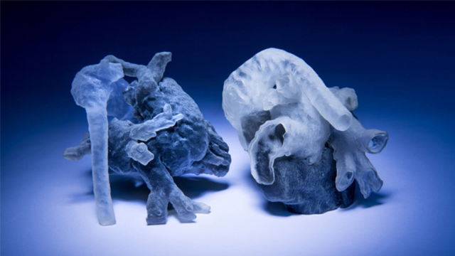 3D Models from MRI Scans