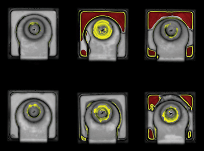 Acoustic scan of failed component packages,  delaminated areas shown in yellow/red